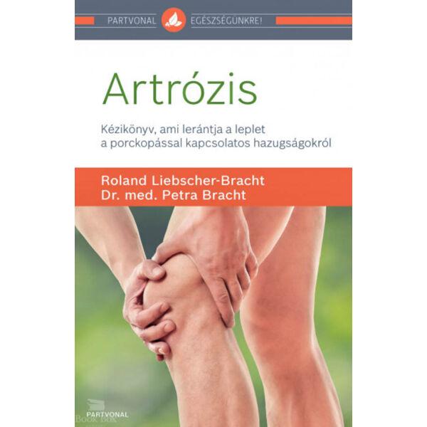 Artrózis - Kézikönyv, ami lerántja a leplet a porckopással kapcsolatos hazugságokról
